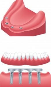 Implantatgetragene Prothesen