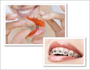Kieferorthopädie - Feste und herausnehmbare Zahnspange