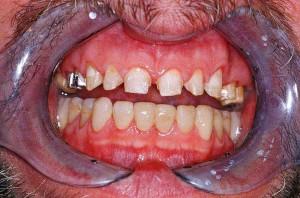 Veneers - Präparierte Zähne