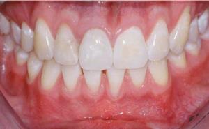 Parodontitis - Besserung des Ergebnisses nach einer klassischen Mundvorhofvertiefung
