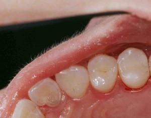 Zahn mit Kunststofffüllung