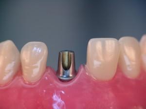 Implantat mit Aufbauelement