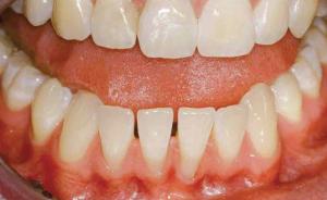 Parodontitis - Flaches Vestibulum mit Retraktionen an den UK-Frontzähnen