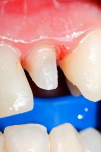 Präparation - Beschlifferner Zahn (Zahnstumpft)