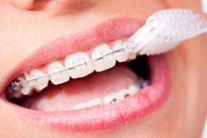 Träger einer Zahnspange müssen besonders gründlich putzen
