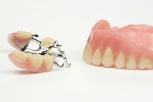 Herausnehmbarer Zahnersatz hier Teilprothese und Vollprothese