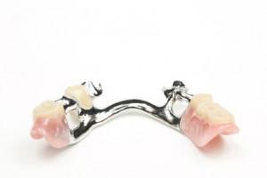 Freiendprothese