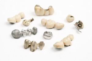 Verschiedene Zahnersatz-Varianten