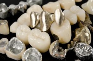Zahnersatz aus verschiedenen Materialien