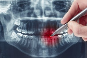 Viele Angewohnheiten schaden unseren Zähnen