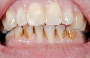 Zahnfront mit Belägen