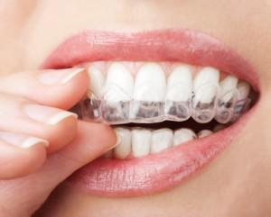 Eine Aufbissschiene verhintert nicht das Knirschen, schützt aber die Zähne