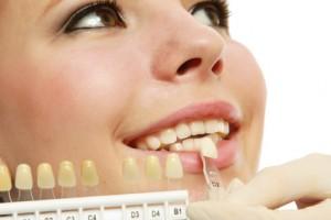 Ermittlung der Zahnfarbe für die Krone
