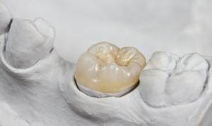 Zahnkrone auf Gipsmodell (überkront)