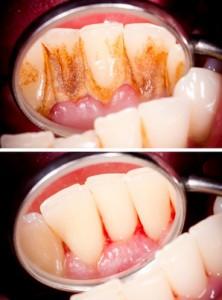 Vor und nach der Zahnsteinentfernung