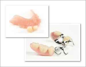 Teilprothesen als Zahnersatz
