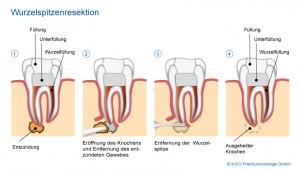 Wurzelspitzenresektion