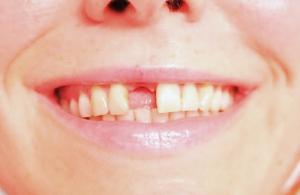 Implantat - Zahnlücke