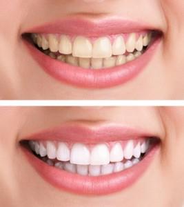 Bleaching - vor und nach dem Zahnbleaching