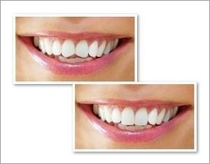 Collage Zahnlänge angleichen