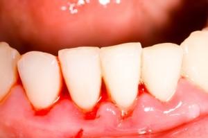 Zahnfleischbluten durch Gingivitis