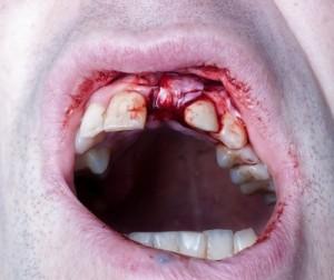 Zahnluxuation
